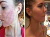 滿臉痘痘的雙胞胎姊妹公開除痘方法,只需3天時間和吃這些東西就能擁有滑嫩臉蛋!