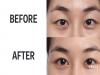 揭秘韓國父母為何在孩子剛高中畢業就送去割雙眼皮,原因讓大家都無法反駁啊!