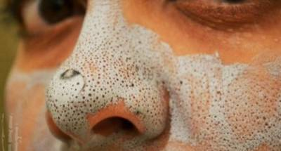 「牙膏加一物」塗在鼻子上,不到一分鐘「黑頭粉刺」全數清光!趕快試試看!!!