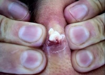 誰說痘痘不能擠?「爆膿大痘」要這樣擠!正確擠痘法,一定要學!絕不留疤!