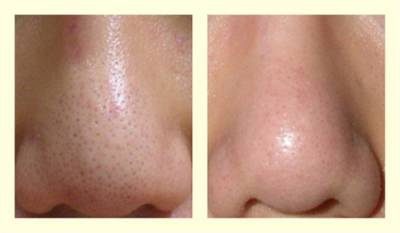 趁隆冬提高肌膚白皙度 八倍淨膚雷射幫你無暇白