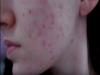 搞清楚臉上的痘痘是哪一種了嗎?用對處方不然...疤痕難以抹滅!