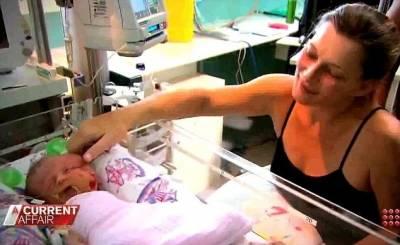 澳大利亞婦女產下雙面一頭連體嬰