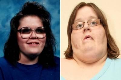 為了結婚,世界上最胖的女人決定要減肥