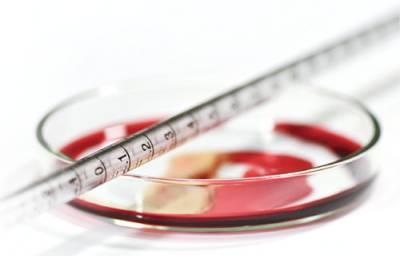 自己的血小板就能回春?國外醫美界盛行的 PRP療法究竟有何魅力?