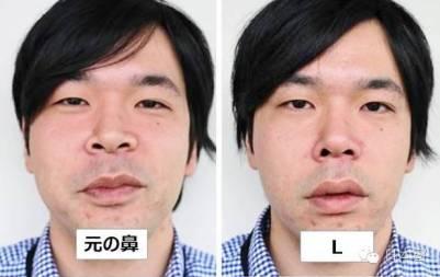 日本又出美容神器!只需一秒擁有混血模特高挺鼻!日本人真的是什麼東西都能發明...