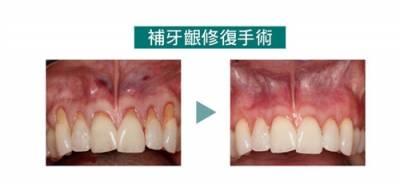 不當的清潔口腔 加速牙周萎縮老化牙周也會初老!?