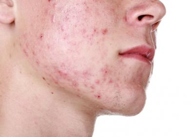 他的痘疤超嚴重,隔壁鄰居教他每天晚上都在臉上放兩片「番茄」,醒來後的效果簡直難以置信!