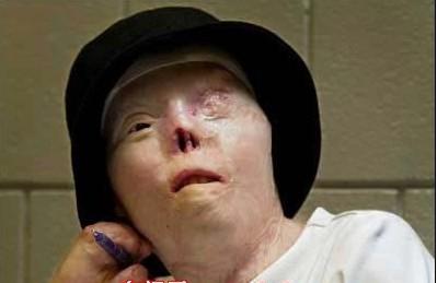 【震憾照片】一個漂亮女孩的車禍前後